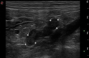 pet ultrasound, dog surgery, vet hospital, pet care, langwarrin, seaford, mornington peninsula, frankston,
